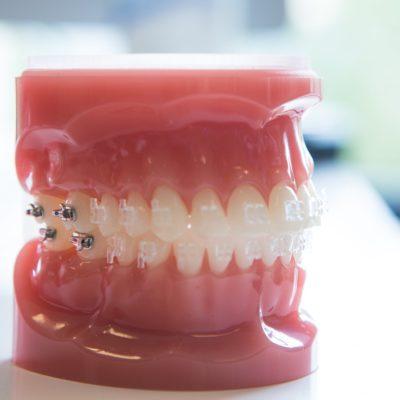 Gilman Orthodontics - Clear Braces Treatment-34