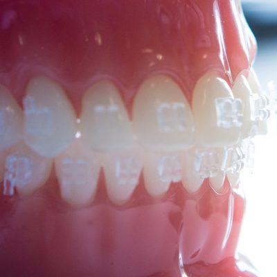 Gilman Orthodontics - Clear Braces Treatment-35