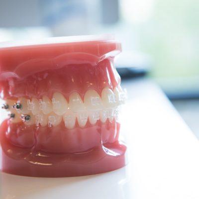 Gilman Orthodontics - Clear Braces Treatment-36