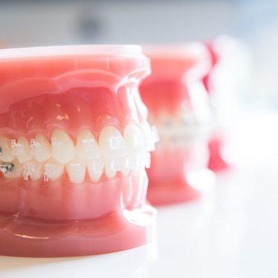 Gilman Orthodontics - Clear Braces Treatment-46
