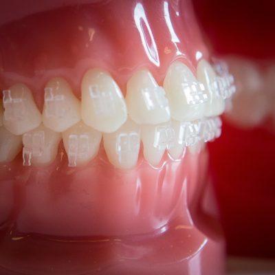 Gilman Orthodontics - Clear Braces Treatment-54
